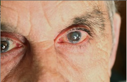Cataract Treatment
